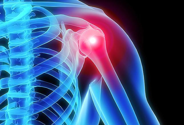 Neoprenová bandáž ramene